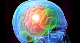 BRAIN INJURY PREVENTION